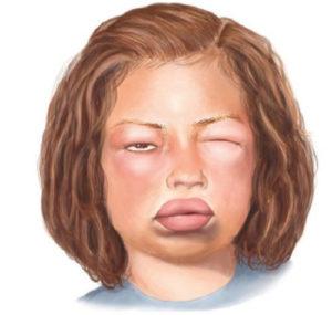 Symptoms of a dangerous allergic reaction